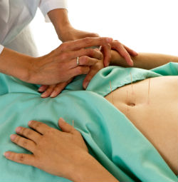 Acupuncture,Acupuncture Near Me,Acupuncture Benefits,Acupuncture For Fertility,Acupuncture For Weight Loss
