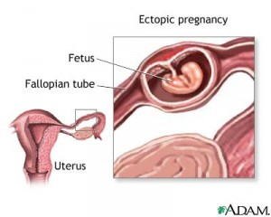 Healing From Ectopic Pregnancy | Prevent Ectopic Pregnancy