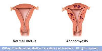 Mayo Clinic Adenomyosis